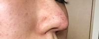 今日3d鼻尖形成をしてきましたが、鼻の穴の上に糸の様な線があるのですが、ダウンタイムが終わるときえるのでしょうか? それともこのままなのでしょうか もし失敗ならすぐ糸をとりたいとおもっています