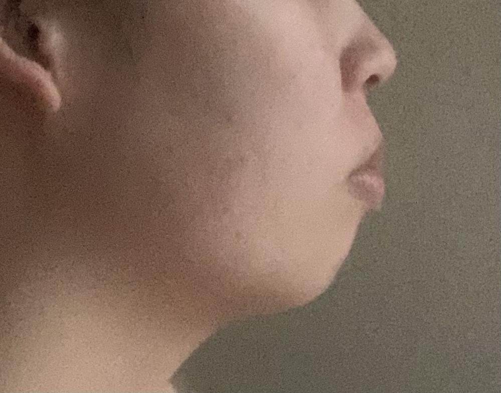 これはアデノイド顔貌ですか?本気で悩んでいます。