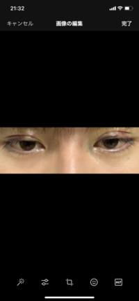 眼瞼下垂 保険適用の手術をして3日経ちます。 左目(画面では右)の二重の食い込みが浅いのが 心配です。 腫れが治れば治るでしょうか…。