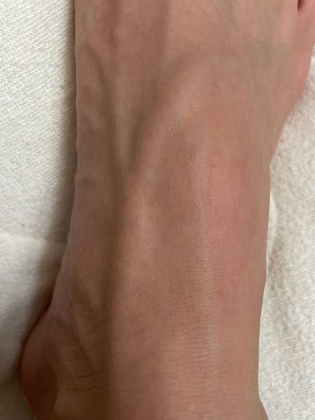 この足の甲の血管って異常ですか?
