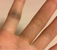 症状 突き指 突き指が長期間治らない