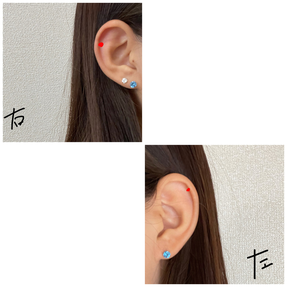 ピアスについて 今右ロブに2個、左ロブに1個あいていて、もうひとつ軟骨(ヘリックス)に開けようと思うのですが、 左と右のどちらの方がバランスがいいと思いますか? 今のところこれ以上増やすつもりはありません。 あと、開けるならここら辺かなという画像も載せておくのでもうちょい下がいいなど意見があればお聞かせください!