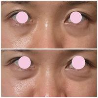 目袋について悩んでいます。 現在38歳ですが、目袋があることによってとても疲れて老けて見えて悩んでいます。 元々目の下に脂肪が多い体質で、目袋はずっとありましたが加齢と共に頬が下がってきて余計に目袋が目立つようになってきました。  私の子供も7歳ですが目袋があるタイプ(目の下の脂肪が目立つ)なので遺伝してしまったと申し訳ないです。  この脂肪を取ってしまおうかと美容整形についても色々調べ...