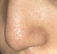 ⚠️閲覧注意⚠️  お目汚し失礼します 18歳女です。元々肌荒れがひどいのですが鼻が特にひどいです。角栓が詰まってて?小鼻も赤い超えて赤黒くなっていて鼻全体色がくすんで茶色っぽいです。 鼻パックなどは中学生の時にした事ありますがここ4年程はしていません。スキンケアをすると余計悪くなっている気がしたので5ヶ月程肌断食をしています。クレンジングはduoを使っていましたが角栓をとるタイプが肌...