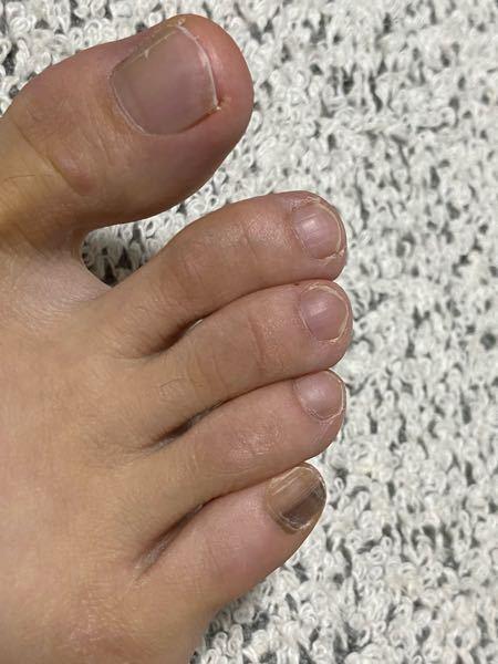 茶色い爪が10年くらいかな? 覚えないくらいずっとあります。 ちなみに母もあります。 20代前後は9センチ以上のヒールを 常にはいてました。 外反母趾です。 病気のバロメーターと聞いて不安になり 質問