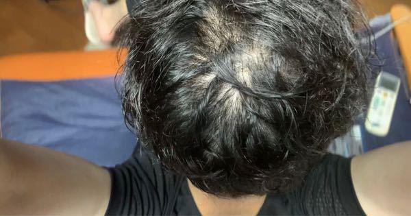 長年AGA治療をしているのですが頭頂部のみが改善しません。むしろ悪化している気がします。 一度皮膚科の診察も受けるべきでしょうか?