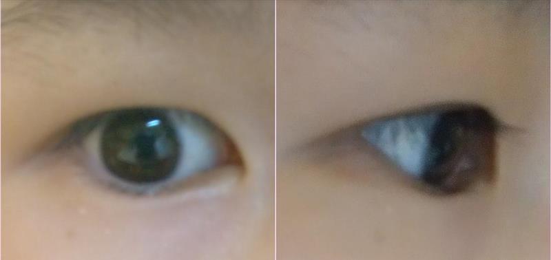 【画像閲覧注意】瞼が重いのですが、何が原因か分かりません。 画像の瞼です。 脂肪が多いのか、アイプチで瞼が伸びたのか、皮?が厚いのか、眼瞼下垂なのか、分かる方いらっしゃいませんか? ちなみに、左右で目をかっぴらいた時に左右で目の開き具合(開きやすさ?)が若干違いますし、アイプチなども左目の方が綺麗にできます。 アイテープや皮膜式アイプチをしても、上から瞼が乗っかってきてしまいます。 お見苦しい画像申し訳ございません。