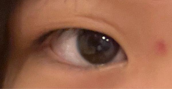 この画像私の右目なのですが、 目の形?枠?が丸くないんです。二重も微妙だし、涙袋も全くないです。 左目はちゃんと丸くて、二重も涙袋もいい感じなんです。 どうやったら治りますかね?マッサージとかア...