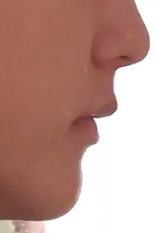 18歳なのにほうれい線が酷いです。 原因に口ゴボの可能性とネットで見たのですが、これは口ゴボですか?