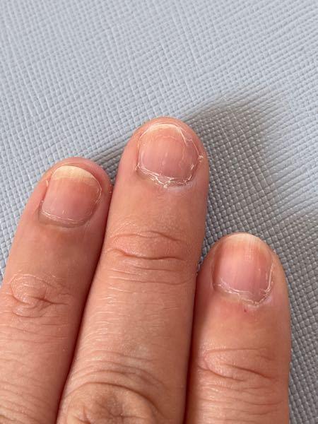 真夏なのに、乾燥してないのに、全部の爪先が二枚爪になり、爪先3mmくらい白くてそこが剥がれます。 マニキュアはもう1ヶ月前にやめました。 仕方ないから深爪にしています。 いつかまた伸ばしてジェルネイルしたいです。 何かケア方法ありますか?お見苦しい写真ですみません。