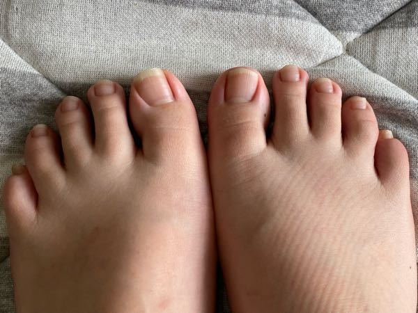 この足の爪は長いですか?状態はどうですか? フットネイルをしに行こうとしているのですが、長さだしなど必要そうでしょうか。 ご回答お待ちしております。