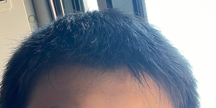 これは、くせ毛ですか?(左側)もう、正直4年ほど悩んでいます。あと、中学2年生男子です。