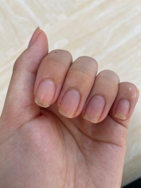 爪の白い部分が汚いです。 写真のように、透明になっていたり黄ばんでいたり。 垢も溜まりやすいです。 昔、爪の間をシャーペンの芯でほじくる癖があり、そのせいで爪の白い部分がおかしくなってしまった...