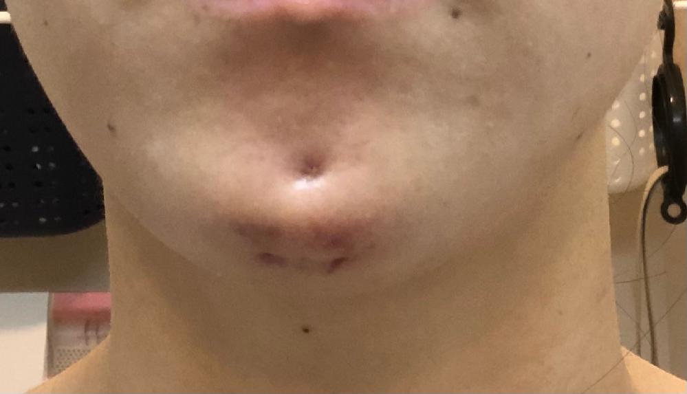 先日Eラインを綺麗に見せるために、顎を前に出す施術を行って来ました。 まだ1日しか経っておりませんが顎の前の糸を通している所が陥没しているのでとても心配で投稿させて頂きました。 術後確認した時に...