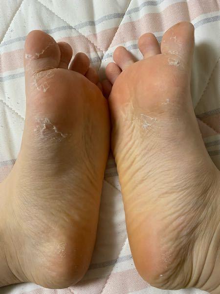 閲覧注意です。 以下の写真のように夏頃?になると足の皮と少し手の皮が向けます。痒みや、痛みはないのですがなんなのかわかる方教えてください ♀️