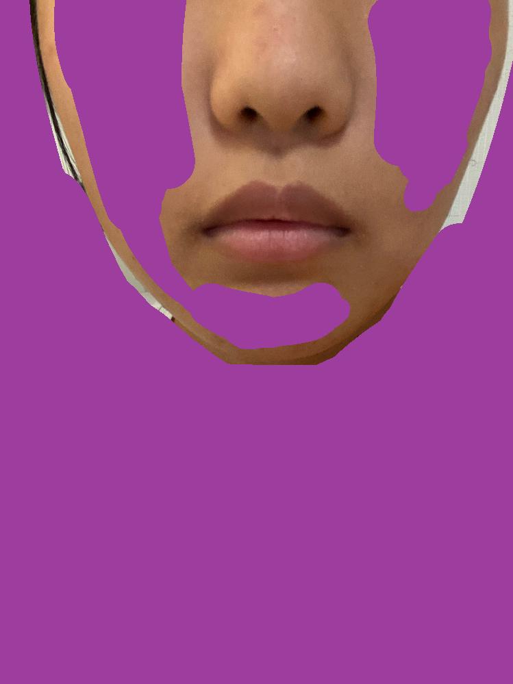 顔半分が特に自信ありません。 だんご鼻とたらこ唇(?)を治したいです。 面長なので大きさが強調されるので困ってます。 対処法を教えて欲しいです。