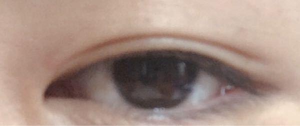 見苦しいお写真すみません。 私の目は元々一重で、昔より太り脂肪がさらに付き瞼の分厚い瞼です。欲を言うと出来れば平行二重にしたいのですがその場合私の目はこの状態よりクッキリと、跡が着いてくれます...