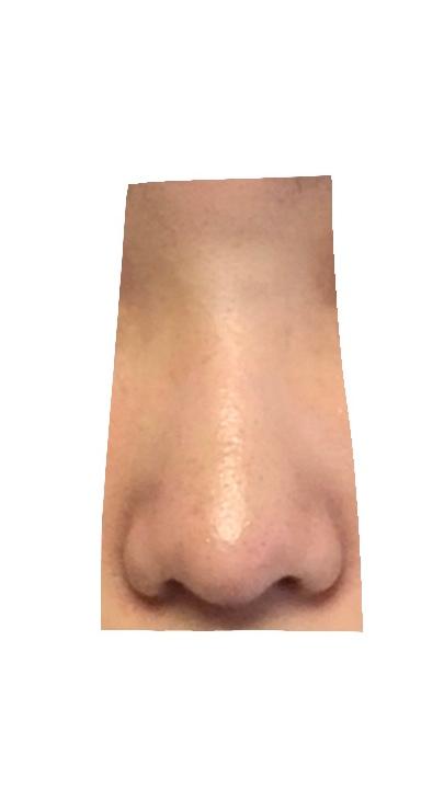 これは10段階で言うとどのくらいの団子鼻ですか。肌汚くてすみません。