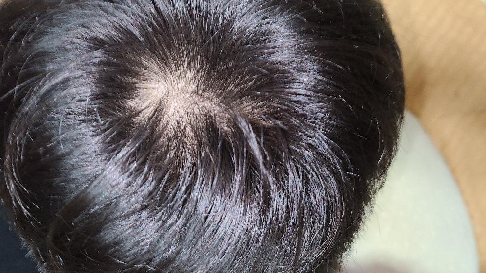 これはハゲの前兆でしょうか?それとも正常なのでしょうか?一応育毛剤は買っています。これから続けて使うべきでしょうか?