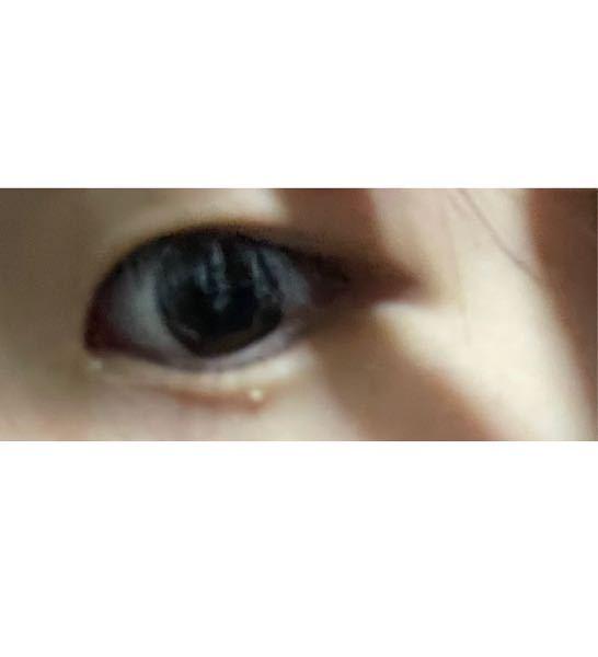 この目の周りにある白いのは何なのか教えて欲しいです…治すことは可能なのでしょうか…