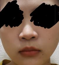 これは団子鼻ですか? どういった整形で鼻を小さくできますか?