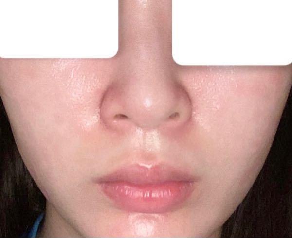 私の鼻は客観的に見て何鼻でしょうか。