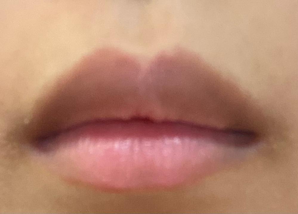 これってたらこ唇ですか? 縦2センチ 横幅4センチです。 また、こういう唇の人はどんな印象ですか?