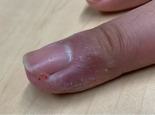 ひょうそ?肉芽腫? 数日前から左手中指に画像のようなできもの?と痛みが出てきました。 これはひ...