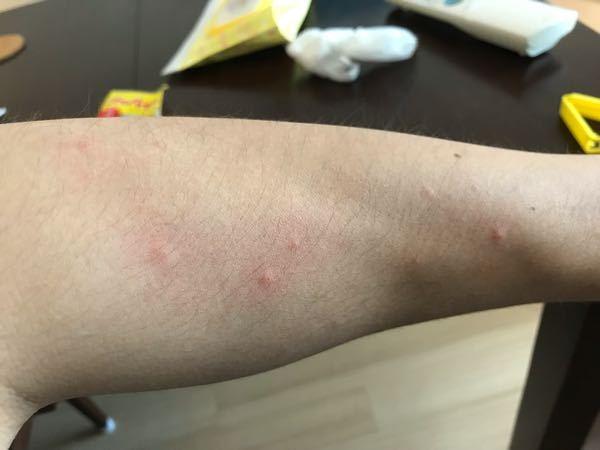 痒いです。これは何ですか?