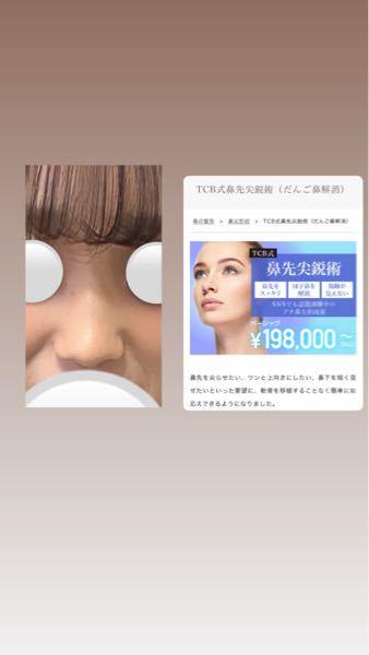 私の鼻です。見てのとおりだんご鼻ですごくコンプレックスでどうしても顔が太ってみてえしまったりします、 貼り付けてあるtbc 式鼻先尖鋭術とプロテーゼl字型をやったら変われますか??鼻筋を入れて花...