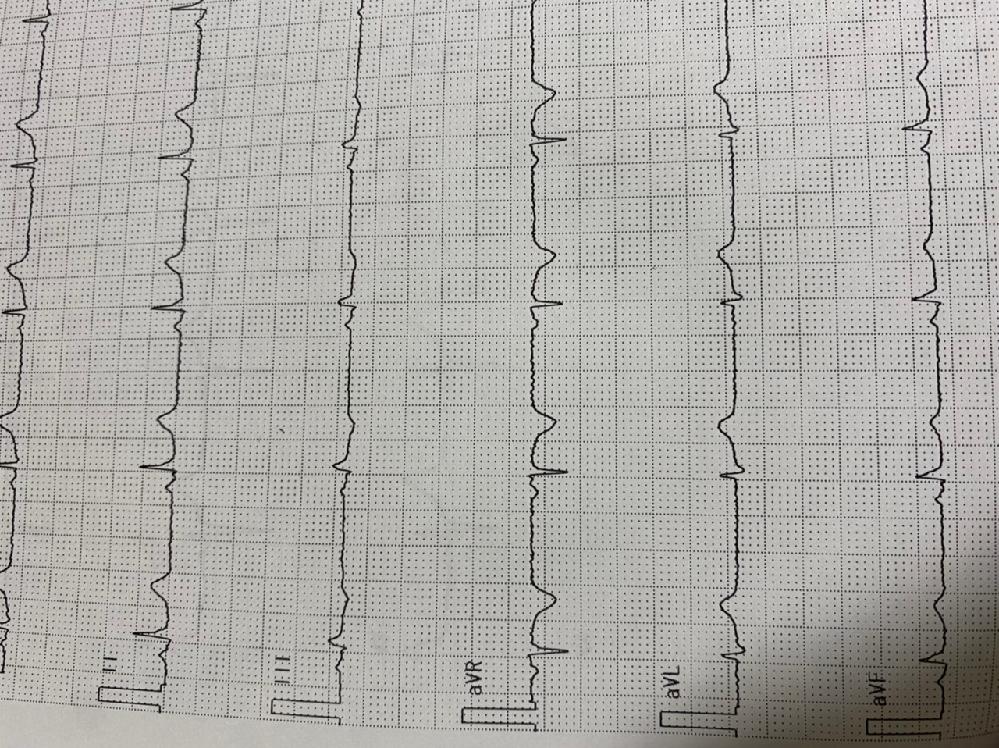 心電図aVRについて。下向きの波は特に異常はなく普通ですか?