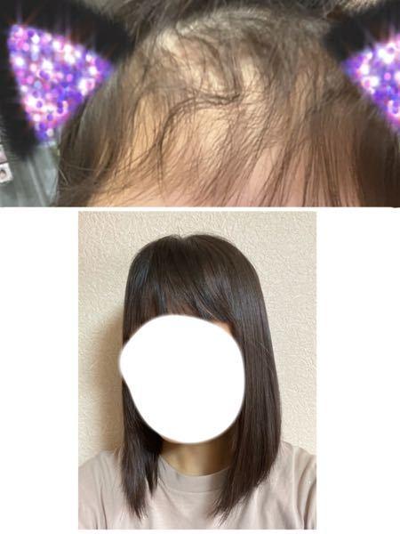 縮毛矯正かけてから 3ヶ月ちょいが経ちました。 後ろ髪がまだ全然寝起きでも ストレートなのですが、 前髪だけでもいいですかね?