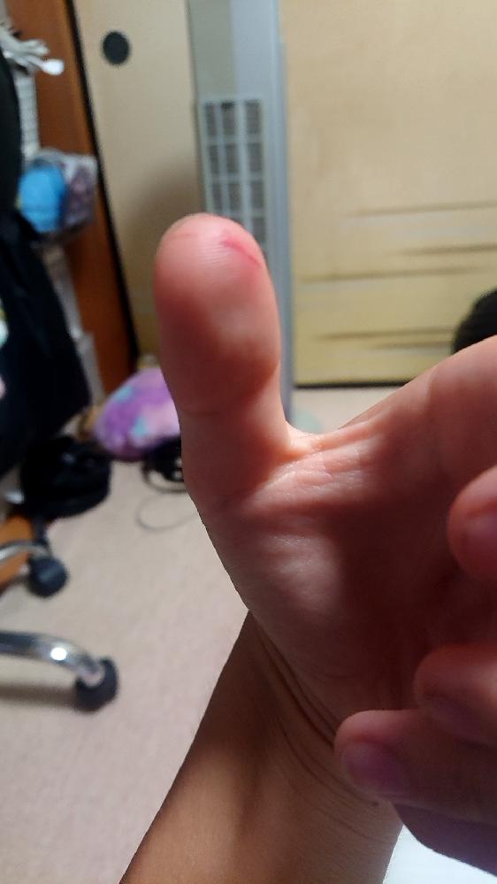 明日友達と銭湯に行くんですけど 今日カミソリで手をこんな感じで切ってしまいました これって行くのやめといた方がいいですか?明日行くので早急な返事お願いします
