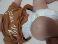 生後5ヶ月の男の子の赤ちゃんが先ほどから足と腕にこのようなプツプツした赤い斑点が計5つくらいあります。 虫さされでしょうか? 顔にはこのような斑点は全くなく、母乳もよく飲みすごく元気です。 原因等分かる方教えてください。