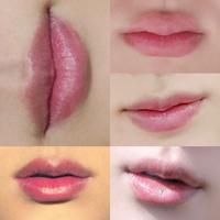 この唇ってヒアルロン酸入ってると思いますか?  私の理想の唇なんですが、全部同じ男性の唇です。 全く違和感ないプリプリ具合なんですが、男性でしかも天然でこんなきれいな唇ありえるのか?っていうのと、もしヒアルで作った唇だとしてももっと不自然ないかにもいれてます!っていう感じになると思っていたので、こんな違和感ない仕上がりになる可能性もあるならやってみたいです。 元々厚みがある人なら違和感...