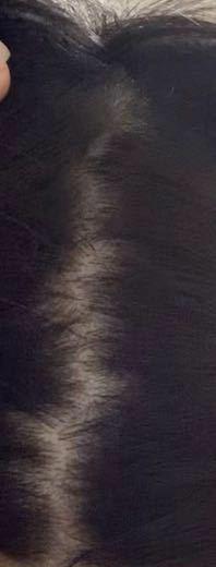 この髪の分け目の毛の密度は正常ですか。異常ですか? 安心しても良いのでしょうか。10代男です