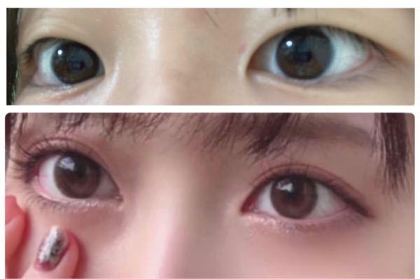 二重整形と目頭切開以外にどこを整形したら上の目から下の目になれるでしょうか?横幅は足りてますか?