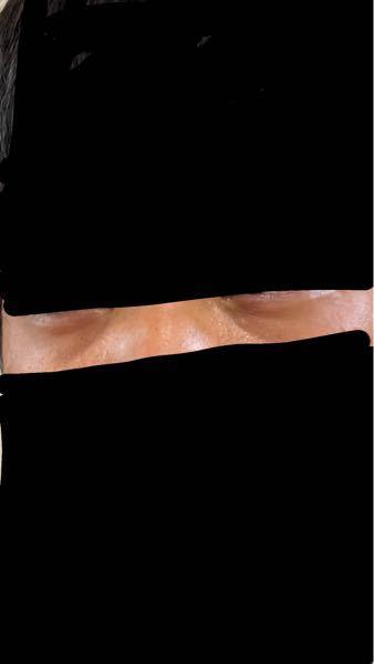目袋の治し方を教えていただきたいです。 生まれつきあり遺伝かと思います。光のあたり方次第ではよくなったりしますが逆に悪くなるほうがほとんどです。アイクリームや涙袋のマッサージなどをしていますがあ...