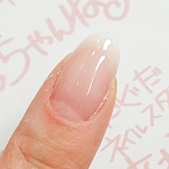 コイン500枚です。 自分の爪で悩んでいます。 自分は丸爪プラス元々家庭環境のストレスで爪噛み癖が着いてしまい、3年ほど前に爪を意識するようになってからピタリと治まりました。ですが、そこから一向に爪が伸びる気配がなく、伸びても1年でようやく伸びたかな?と感じるぐらいです。 自分で勝手に伸びるのが遅いと思っているのですが、高校生になって周りが美意識に目覚めてきて、自分も1番のコンプレックスの爪を治したい、よく見えるようにしたいと思いました。 そこで、ネイルで長さ出しというものがあるのを知り、是非やってみたいと思ったんです。 ですが、ネイルサロンでのネイルはした事がなく、全くの無知ですので、どんな感じなのか、メニューや、ネイルの種類(長さ出しをするための)など全く分からないので、美容の先輩方に聞きたく質問させて頂きました。どんなコース、とか、何がいいのでしょうか…?学校があり、校則的には派手なネイルでなければOKです。自然な感じ?自爪風ネイルというやつです。また、神戸市に住んでいる方であれば、ここは絶対やめとけというネイルサロン、もしくはここすごく良かったっていうネイルサロンありますか? ネイルケアで自分に出来ることはしているつもりです。それでもなかなか伸びないし、綺麗な爪にならないので悲しいです。どうかアドバイスお願い致します。こんな爪にしたいです。可能ですか?