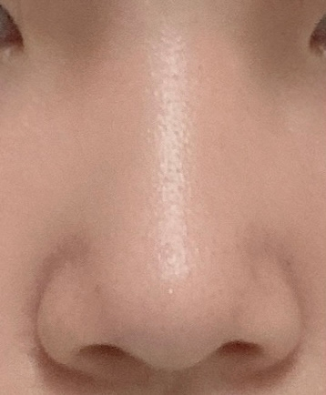 これって団子鼻、にんにく鼻、豚鼻のどれだと思いますか(;_;)