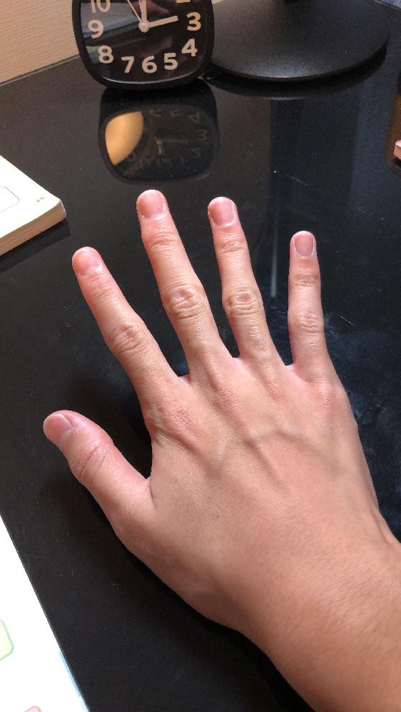 手がコンプレックスです。この手をよりきれいにすらっとしたいのですが、マッサージは