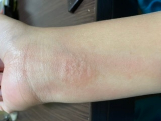 前からずっと腕のほんの1部のところが痒くなってブツブツみたいなのになります これはなんでしょうか アレルギーなのでしょうか