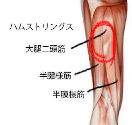 ~コイン250枚~ 左太ももの裏(赤丸のところ)が約半年くらい違和感があるというか、伸ばしたり押したりすると筋肉痛を揉んでいる感じで痛気持ちいいです。 2年前くらいから部活のバレーで足の甲が痛く...