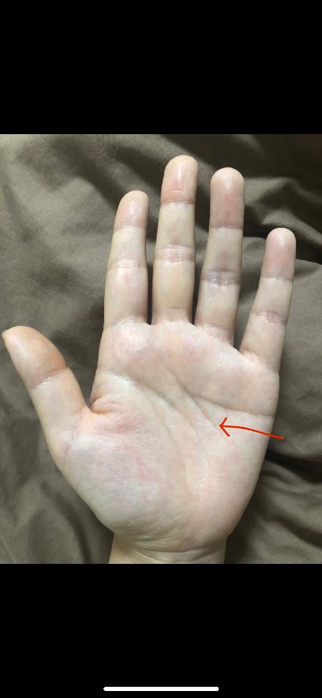 手相を見てもらいたいです! 前々から左手の感情線に対して斜めに入っている線が気になっています。 調べてみてもなかなか同じような形が見つからず、二重感情線の分離型なんだろうな、と自分では思っていますが‥ 一体この線はどんな意味があるのでしょうか? 最近ふと見てみると線がとても伸びたように感じており、長さは4cm〜5cmぐらいあると思います。 上は人差し指の付け根ら辺、 下は小指の中心から真下に下がったところにあります。 写真では見づらいと思いますが‥すみません(*_*) 気になるので手相占いしに行ってみようかなぁと思ってはいるのですが‥本当に当たるのかと不安で行けていません(;ω;) 感情線以外にも気になるところがあれば教えて頂きたいです! よろしくお願いします!