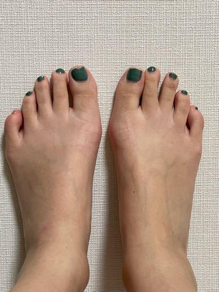 パンプスを履くと必ず指先と小指の付け根横部分が痛みます。 閲覧注意:足の画像あります。 パンプスを履くと指先と小指の付け根の横分袖が痛くなります。 パンプスが緩いからつま先にずれるのかなと滑...