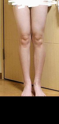 短足ですか? 膝が汚くてすみません