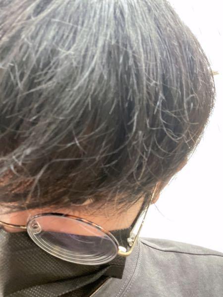 髪の毛が枯れています。どうしたらいいですか 縮毛矯正したら治りますか?