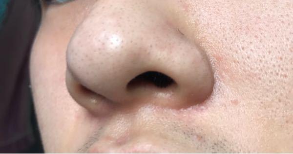 写真のように鼻とその周りが汚いです。どう言った手入れをするべきでしょうか? 美容などに詳しい方教えてください。