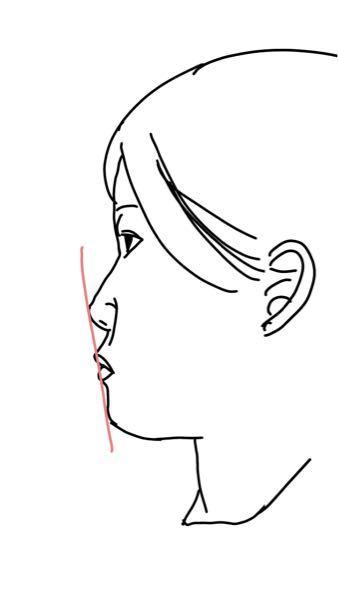 高校三年生女子です。 自分の横顔が嫌いで、 写真のように平たいのがコンプレックスなのですが、いつか、整形したいと思っています。なので、具体的にどのような所を治せば綺麗な横顔になれるか教えてください。また、マッサージなどがあったらそれも教えていただけたら嬉しいです。