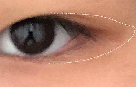 写真だと分かりにくいのですが、目尻の白い線で囲ってある部分が黒いです。くまみたいなものなのでしょうか?もう治らない感じですか?